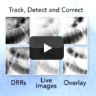 CyberKnife® Treatment Option Thumbnail